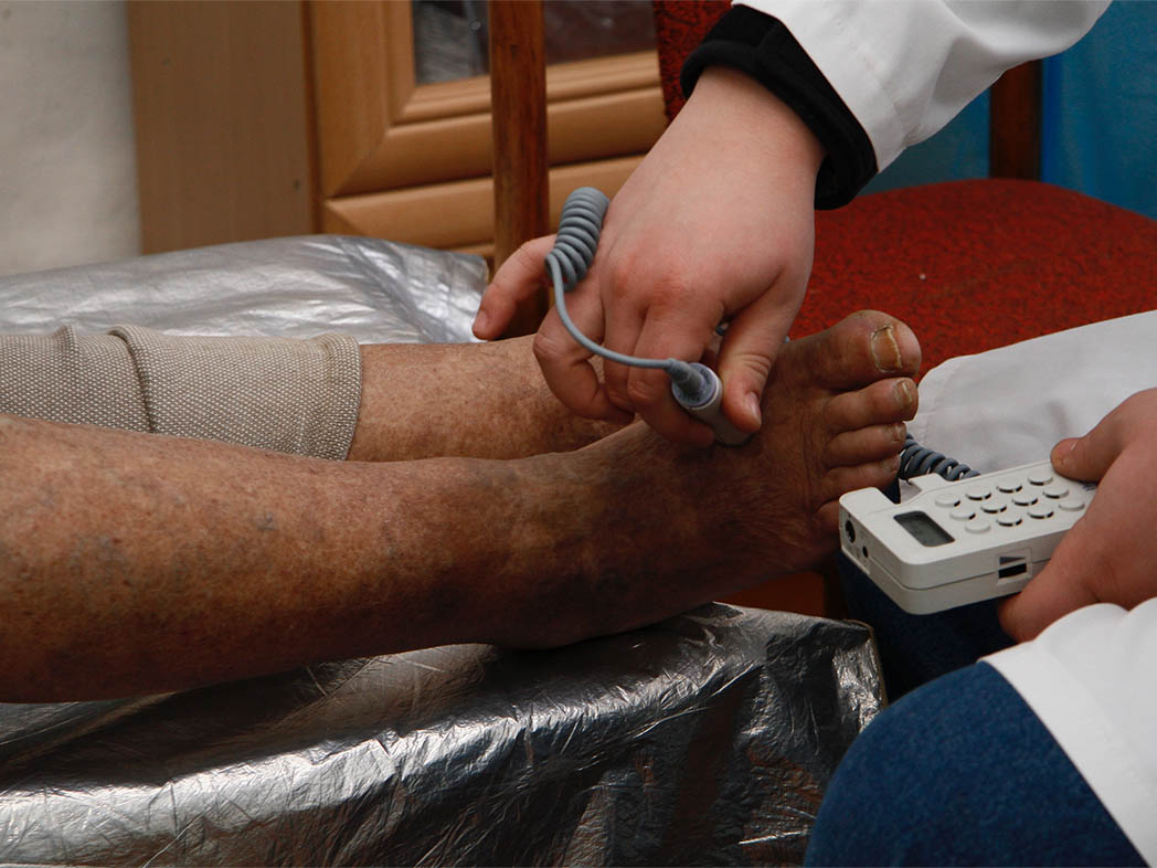 Diabetic foot cabinet Technique of study lower extremities vessels with the Mini-Depopler apparatus